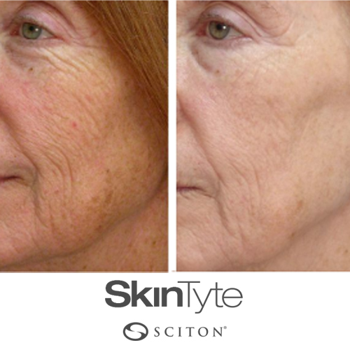Forever Young Skin Tyte
